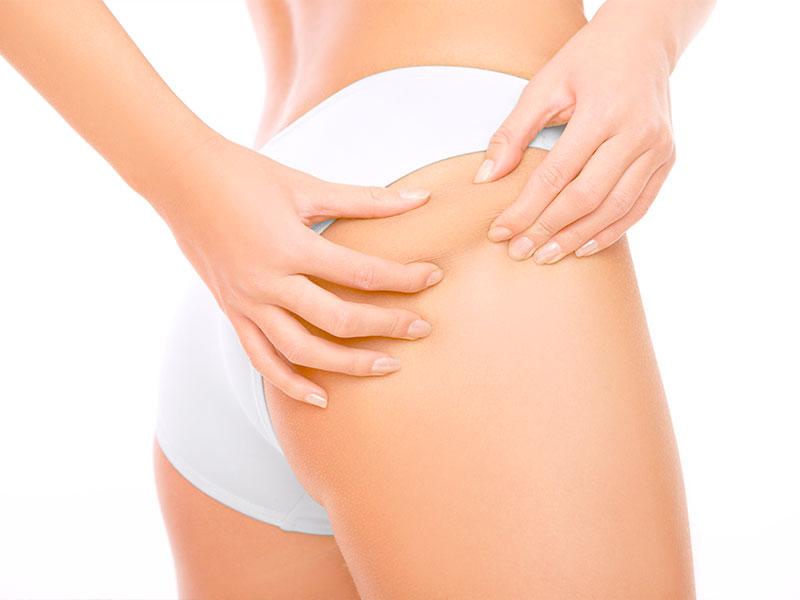 Tratamiento de Cavitación | Eliminar Celulitis