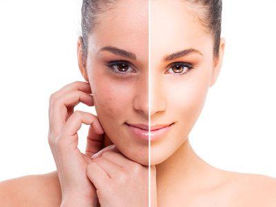 Facial Oxigenante | Ántes y Después