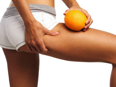Vacumterapia para Eliminar Piel de Naranja